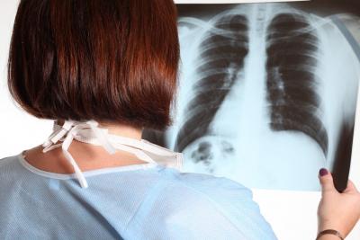 Osteoporosi: crollo di una o piu' vertebre